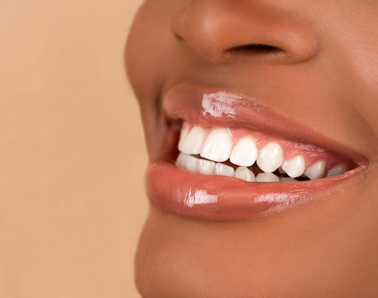 Trikwan - Gummy Smile