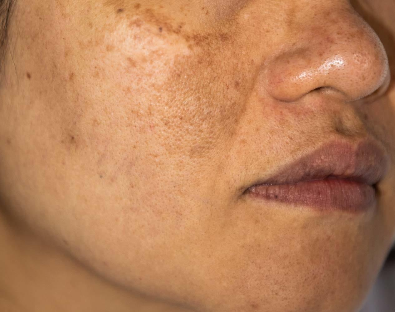 Trikwan - Hyperpigmentation