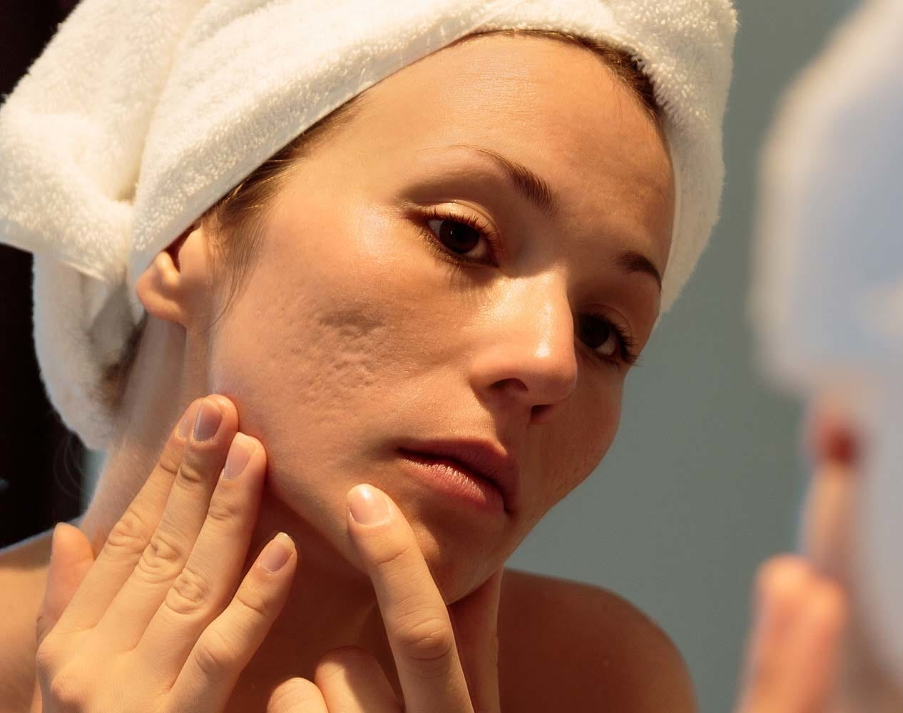 Trikwan - Obagi Medical Acne Express Facial (POM)
