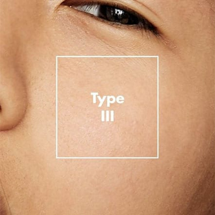 Fitzpatrick skin type 3