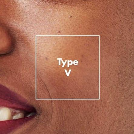 Fitzpatrick skin type 5
