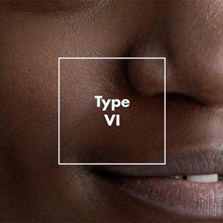 Fitzpatrick skin type 6